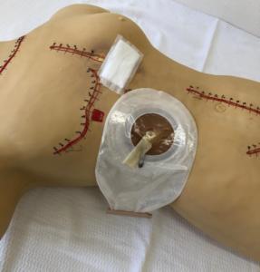Manequim para realizar treinamento em curativos e cuidados com bolsa de colostomia e drenos em geral.
